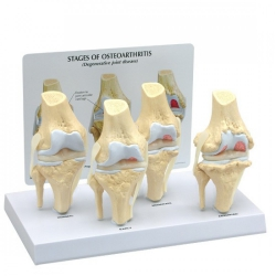 Model 4-stage osteoarthiritis