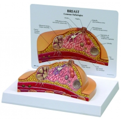 Model Breast Cross Section