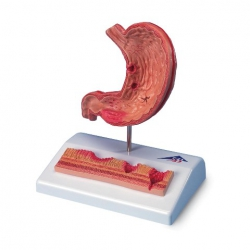 Model Stomach With Ulcers