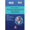 Current Updates On Polycystic Ovary Syndrome Endometriosis Adenomiosis